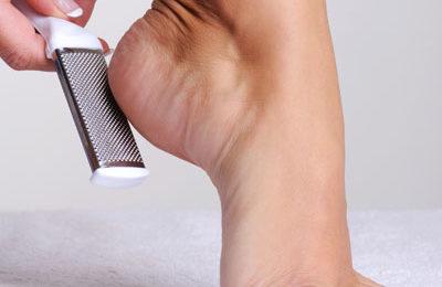 Healing your cracked heels