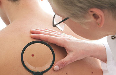 Moles and beauty spots explained