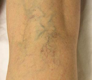 Get rid of spider veins
