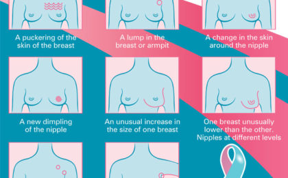 How to do a breast self-examination