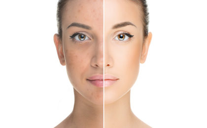 Can tissue oil reduce pigmentation marks?