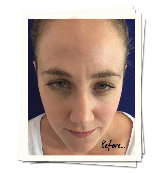 botox-review