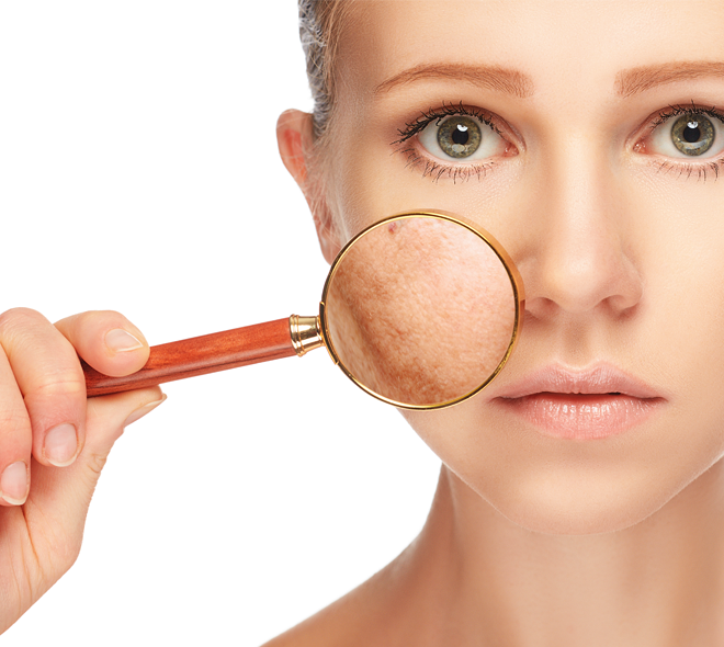 can-laser-give-pigmentation