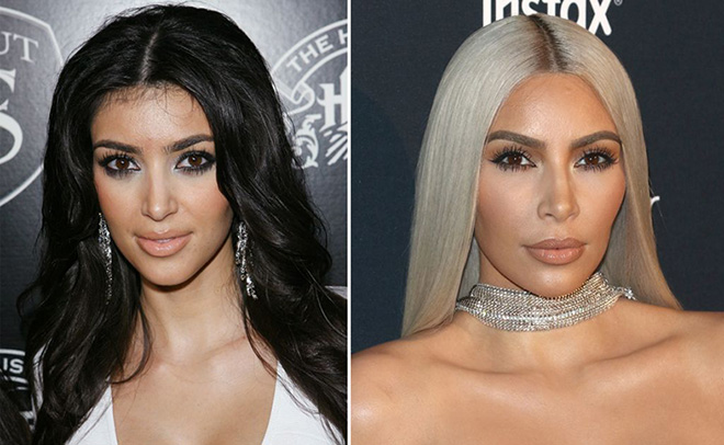 Kardashian-Jenner beauty: Then and now